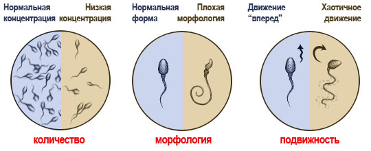 Сперма низкая фруктоза